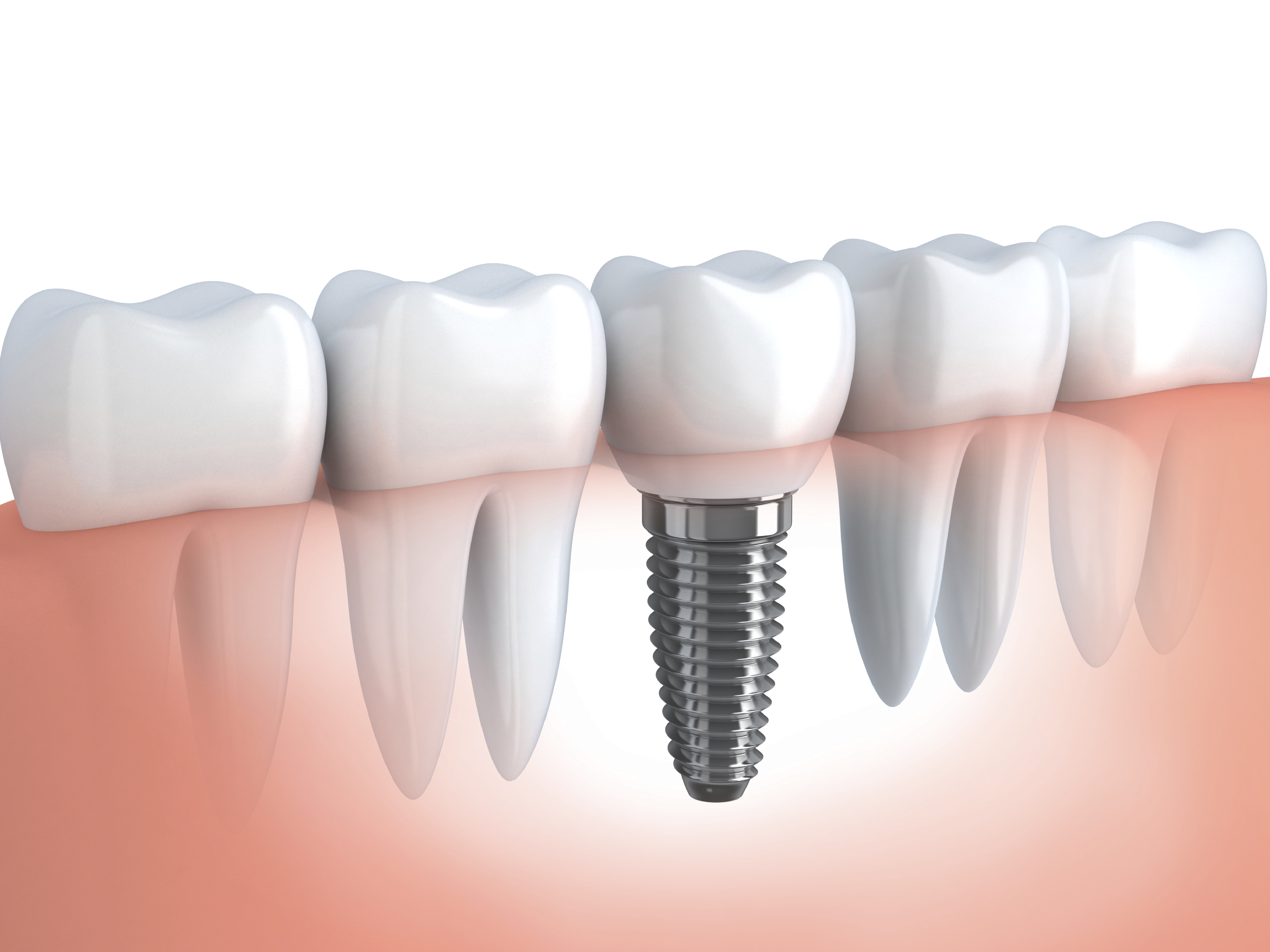Dental Implant Procedure and Cost - Dr B Doherty