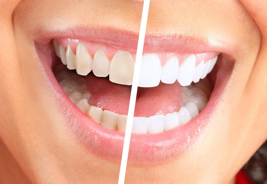 Teeth Whitening Procedure and Costs - Dr B Doherty